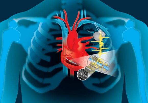 ההתקן מנצל את האנרגיה הקינטית של הלב לייצור חשמל לקוצבים ומכשירים אחרים   איור: Patricio R. Sarzosa, Thayer School of Engineering