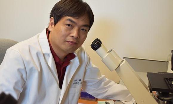 מקווים לפתח בעזרת הממצאים טיפול יעיל באנורקסיה נרבוזה. ראש צוות המחקר, קינגצ'ון טונג | צילום: אוניברסיטת יוסטון