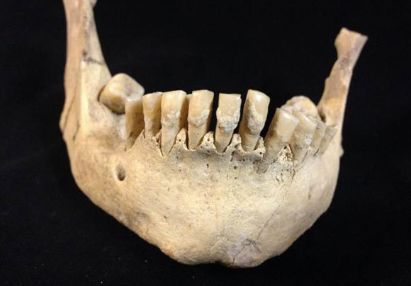 לסת של תושב האיים הבריטיים מלפני 5,500 שנה, שעליה נמצאו שרידי חלב | Dr Sophy Charlton, University of York