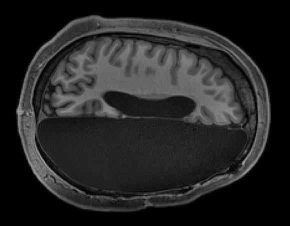 כריתת מחצית המוח   Caltech Brain Imaging Center
