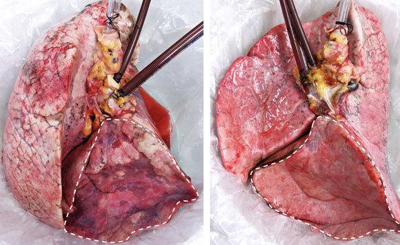 ריאת אדם לאחר EVLP שלא הצליח (שמאל) ולאחר הטיפול עם החזיר (ימין) | צילום: Ahmed Hozain and John O'Neill/Columbia Engineering