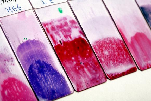 לוחיות של משטח פאפ | איור: Science Photo Library