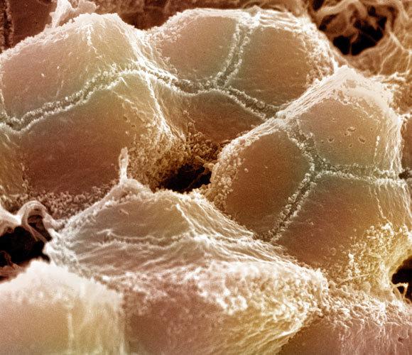 צילום מיקרוסקופ אלקטרונים סורק של כבד עכבר | מקור: Science Source / Science Photo Library