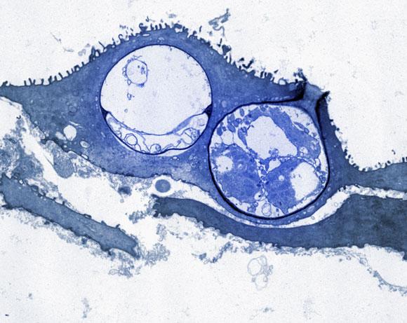 תאי הפטריה B. dendrobatidis על עור של דו-חי. צילום במיקרוסקופ אלקטרונים. מקור: Science Photo Library