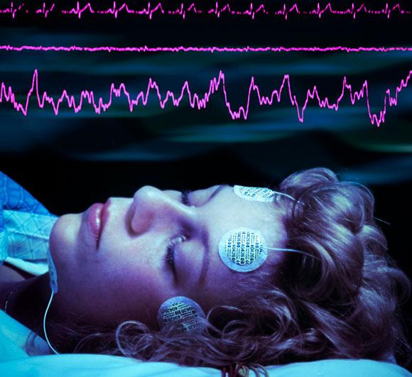 אישה ישנה עם אלקטרודות על מצחה, גלי מוח מעליה | SPL