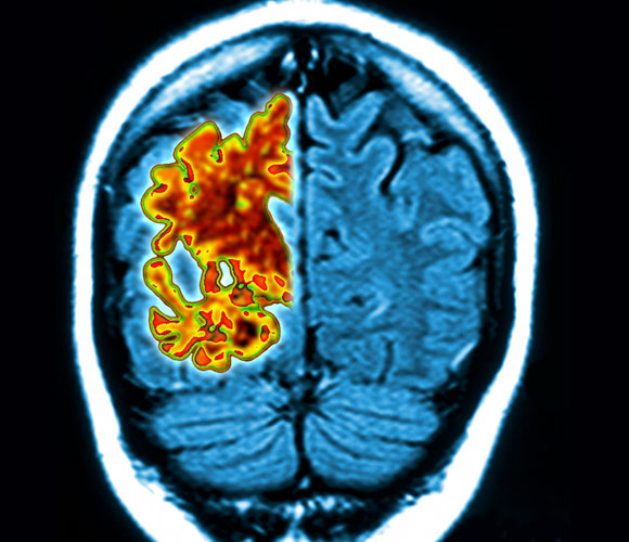 ניוון בצד שמאל של המוח, סריקה