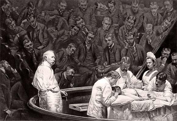 ניתוח הסרת שד לחולה במאה ה-19. על כתפי ענקים | מקור: Chemical Heritage Foundation / Science Photo Library