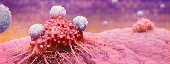 מרוץ חימוש בלתי פוסק. תאי T תוקפים תא סרטני   איור: TIM VERNON / SCIENCE PHOTO LIBRARY