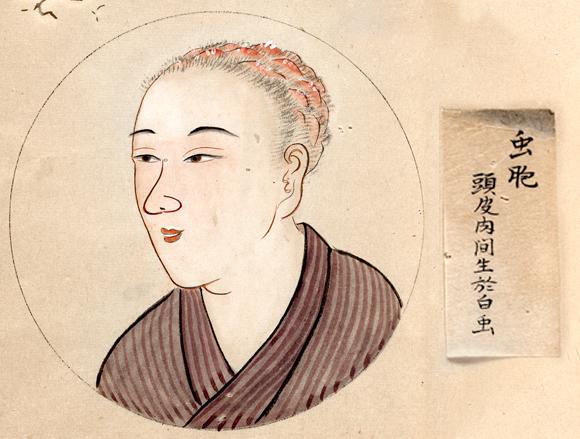 מטופלת בכינים, יפן, המאה ה-19 | SPL