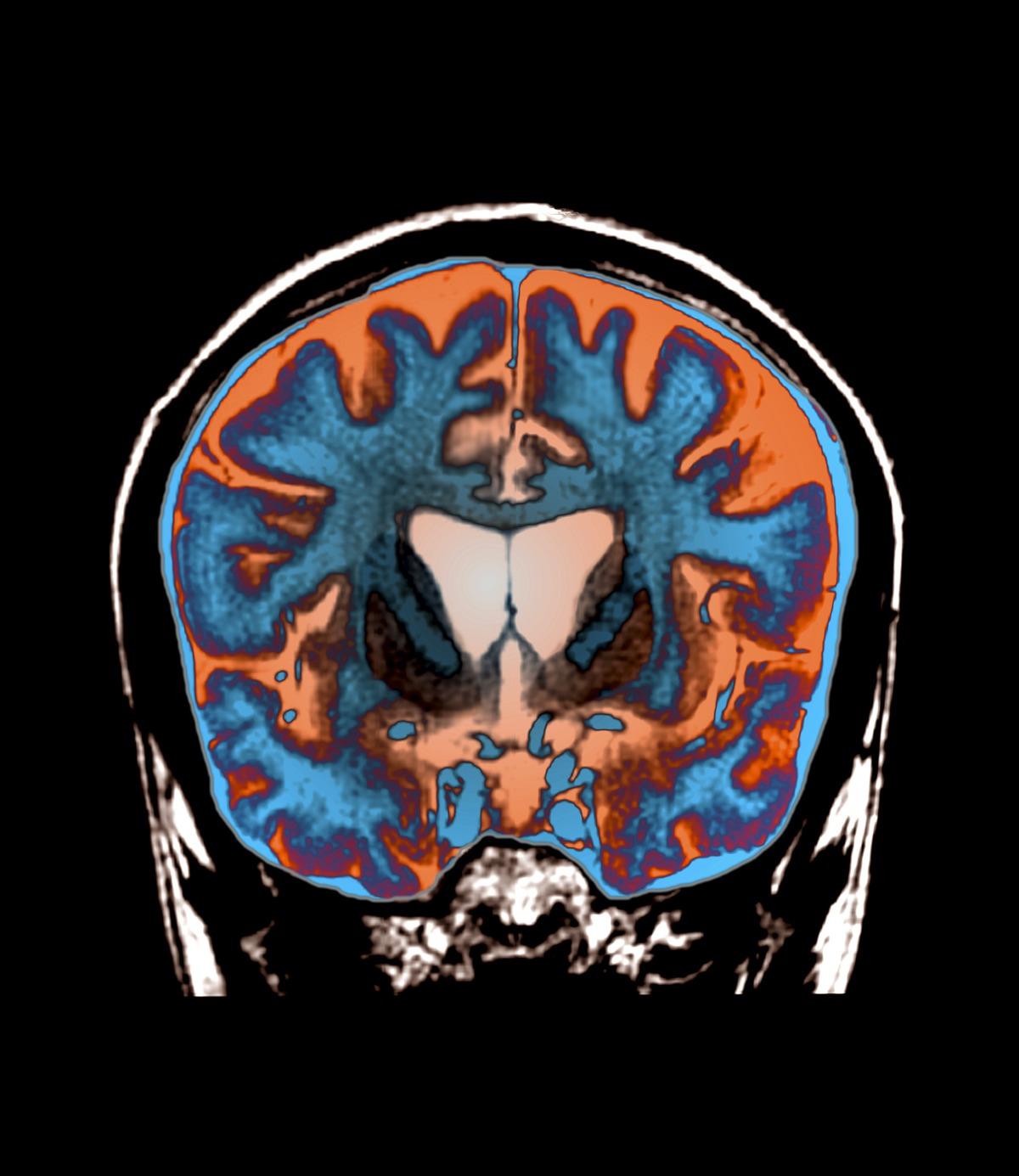 סריקת MRI צבועה של מוח של חולה הנטינגטון, מקור: spl