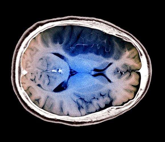 סריקת MRI של מוח לאחר שבץ. עם זאת, החוקרים מצאו רק מִתאם, לא קשר סיבתי | צילום: Science Photo Library