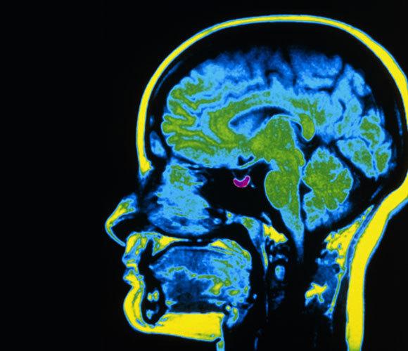 צילום MRI עם בלוטת יותרת המוח מודגשת בסגול | Scott Camazine, Science Source, Science Photo Library