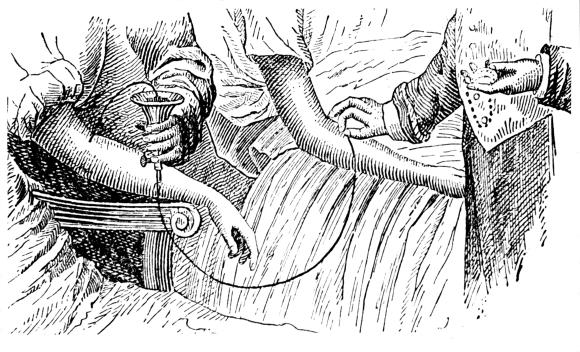 עד היום לא נמצאו ראיות שזה עוצר הזדקנות. אירו של עירוי דם בספר מהמאה ה-19 | מקור: Science Photo Lib
