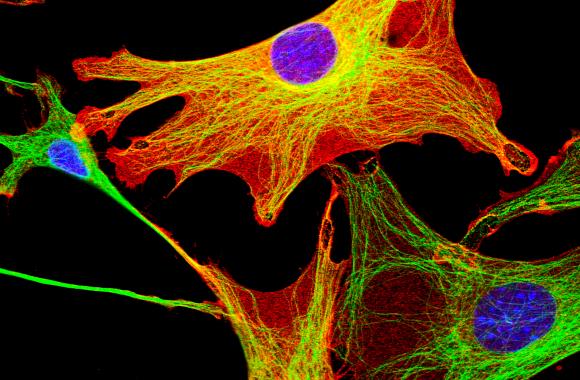 פיברולסטים מסרטן שד בעכברים | צילום במיקרוסקופ קונפוקאלי: DAVID ROBERTSON, ICR / SCIENCE PHOTO LIBRARY