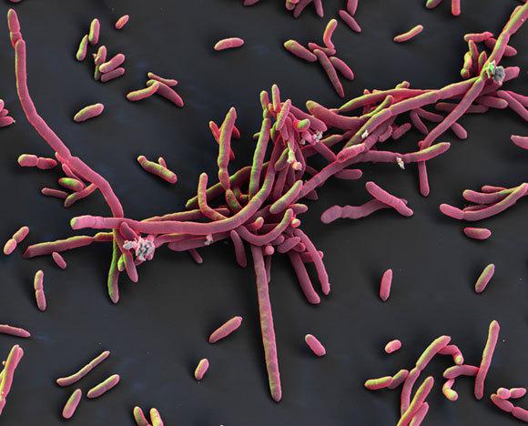 תמונת מיקרוסקופ אלקטרונים של החיידק Aeromonas hydrophila | תמונה: science photo library, Eye of Science