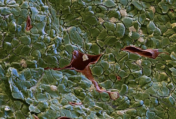 תאי דם לבנים (בלבן) שחדרו לגידול סרטני. צילום במיקרוסקופ אלקטרונים סורק   צילום: Eye of Science / Science Photo Library