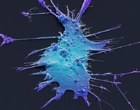 דווקא התאים של הכבד הם שמעוררים את התא הסרטני. צילום צבוע במיקרוסקופ אלקטרונים סורק של תא HSC   מקור: STEVE GSCHMEISSNER / SCIENCE PHOTO LIBRARY