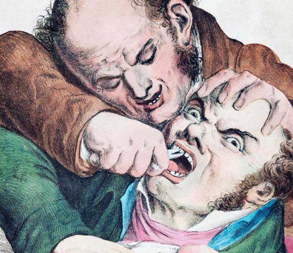 עקירת שיניים במאה ה-19
