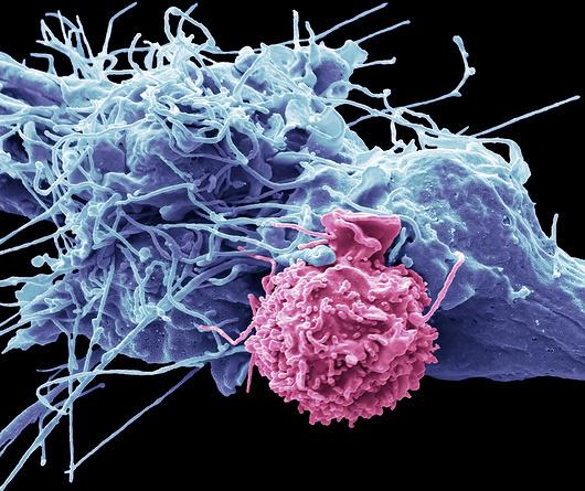 צילום מיקרוסקופ אלקטרונים של תא הרג ותא סרטן, קרדיט: SPL