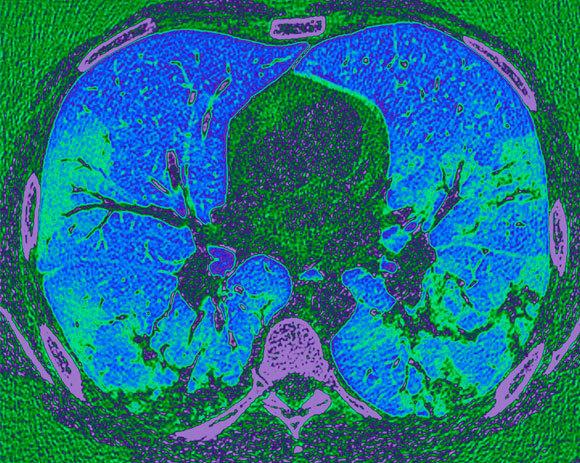 נגיף מסוכן. סריקת CT של ריאות אדם שפיתח דלקת ריאות בעקבות מחלת COVID-19 | צילום: PR MICHEL BRAUNER, ISM / SCIENCE PHOTO LIBRARY