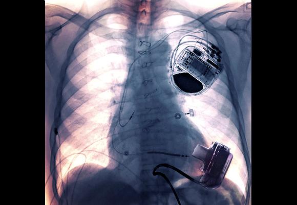 צילום רנטגן חזה של גבר בן 60 עם קוצב לב ומשאבת לב  Zephyr, Science Photo Library