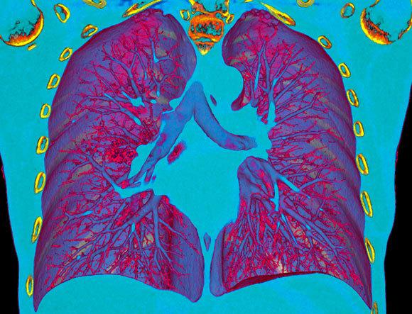 בדיקת CT מאפשרת לזהות את דלקת הריאות של חולה COVID-19 (הכתם האדום משמאל למרכז התמונה) | מקור:  VSEVOLOD ZVIRYK / SCIENCE PHOTO LIBRARY