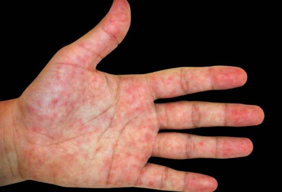 פגיעות דמויות כוויות קור על כף יד של חולה ב-COVID-19 | צילום: ISM / SCIENCE PHOTO LIBRARY