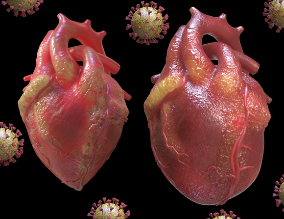 הדמיה של לב דלקתי (מימין) לעומת לב בריא | מקור: TIM VERNON / SCIENCE PHOTO LIBRARY