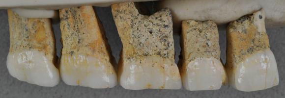 חלק מהשיניים שנמצאו במערת קלאו | Callao Cave Archaeology Project