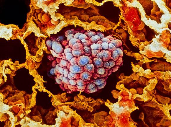 תמונת מיקרוסקופ אלקטרונים סורק של גידול בריאה | Moredun Animal Health Ltd, SPL