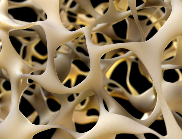 עצם של חולה אוסטאופורוזיס   איור: Science Photo Library