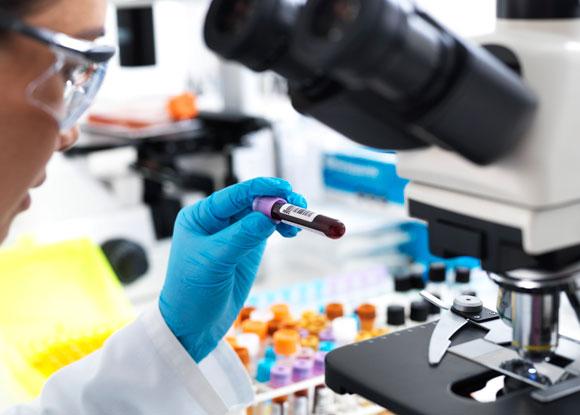 בדיקה של דגימות דם | צילום אילוסטרציה: Science Photo Library