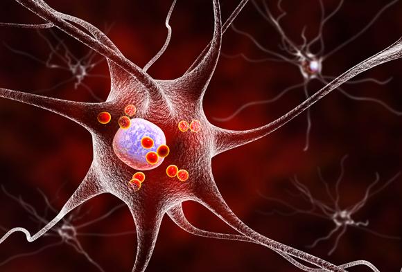 תאי עצב במוח של חולי פרקינסון | איור: Science Photo Library