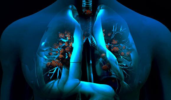 הנגיף תוקף את תוקף את התאים בריאות. איור: DESIGN CELLS / SCIENCE PHOTO LIBRARY