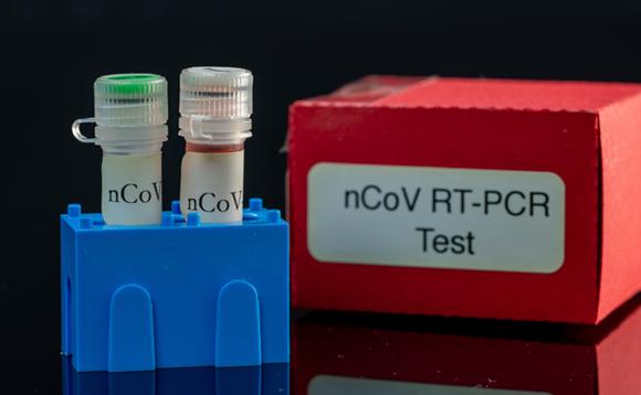 ערכה לבדיקה מולקולרית (PCR) | צילום: WLADIMIR BULGAR / SCIENCE PHOTO LIBRARY