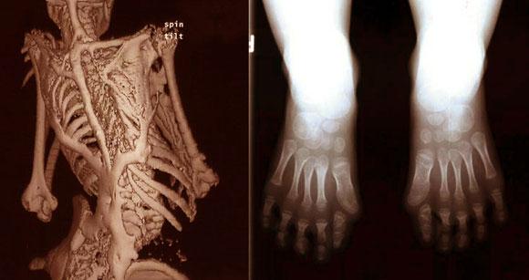 המחלה מתחילה בבהונות מעוותות ומסתיימת בשלד שני שמונע מהחולים לאכול ולנשום. צילומים מתוך מאמר על FOP