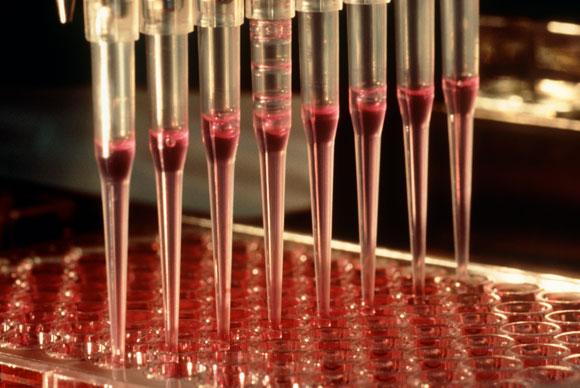 אינטרלוקין 2 מעודד התרבות של תאי T וכך מגביר את תגובת מערכת החיסון   צילום: Philippe Plailly / Science Photo Library