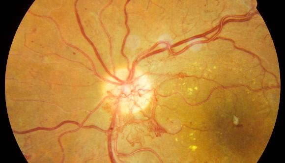 הפגיעה בכלי הדם בעין עלולה לגרום לעיוורון. צילום רשתית של חולה סוכרת | מקור: Science Photo Library