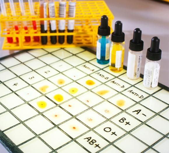 בדיקה לקביעת סוג דם | מקור: Tek Image / Science Photo Library