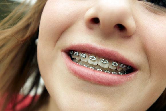 אישה עוברת יישור שיניים