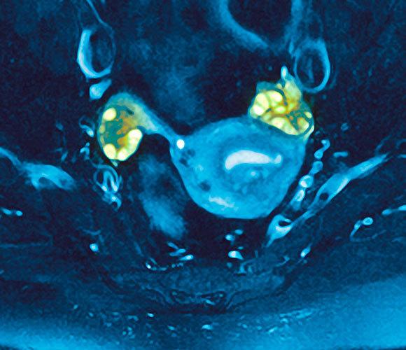שחלות פוליצסטיות (בירוק) בסריקת MRI | מקור: GUSTOIMAGES / SCIENCE PHOTO LIBRARY