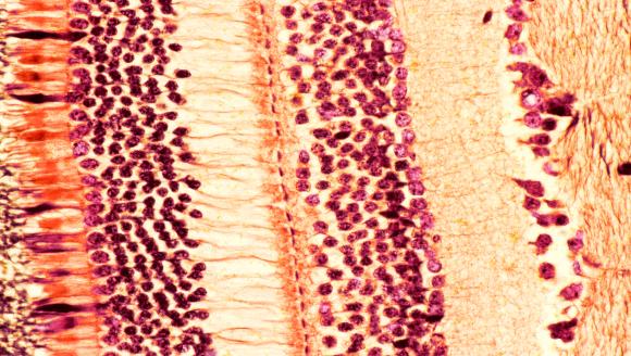 מבנה הרשתית: התאים קולטי האור משמאל, בוורוד וכתום, ומאחוריהם שכבות של תאי עצבים (צהוב) | צילום במיקרוסקופ: STEVE GSCHMEISSNER / SCIENCE PHOTO LIBRARY