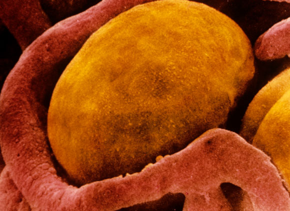 ,צילום מיקרוסקופ אלקטרונים של תא שומן חום | Prof S. Cinti, SPL