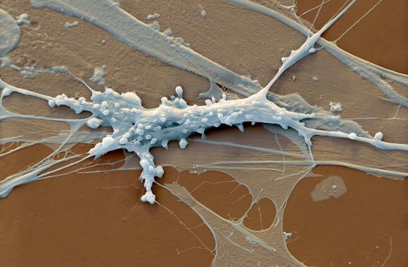 תא פיברובלסט | צילום במיקרוסקופ אלקטרונים סורק: EYE OF SCIENCE / SCIENCE PHOTO LIBRARY
