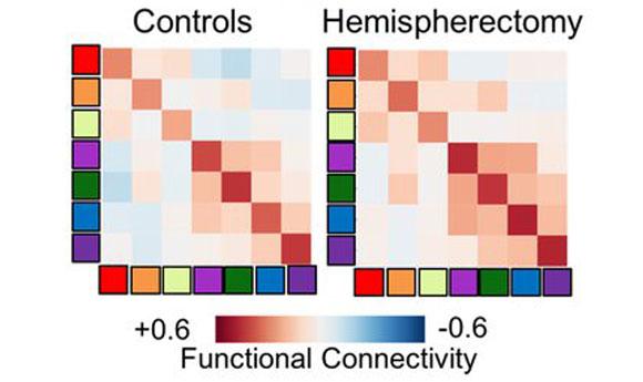 דירוג החיבור הרשתי של בעלי מוח שלם (משמאל) וחצי מוח (מימין) | מקור: Caltech Brain Imaging Center