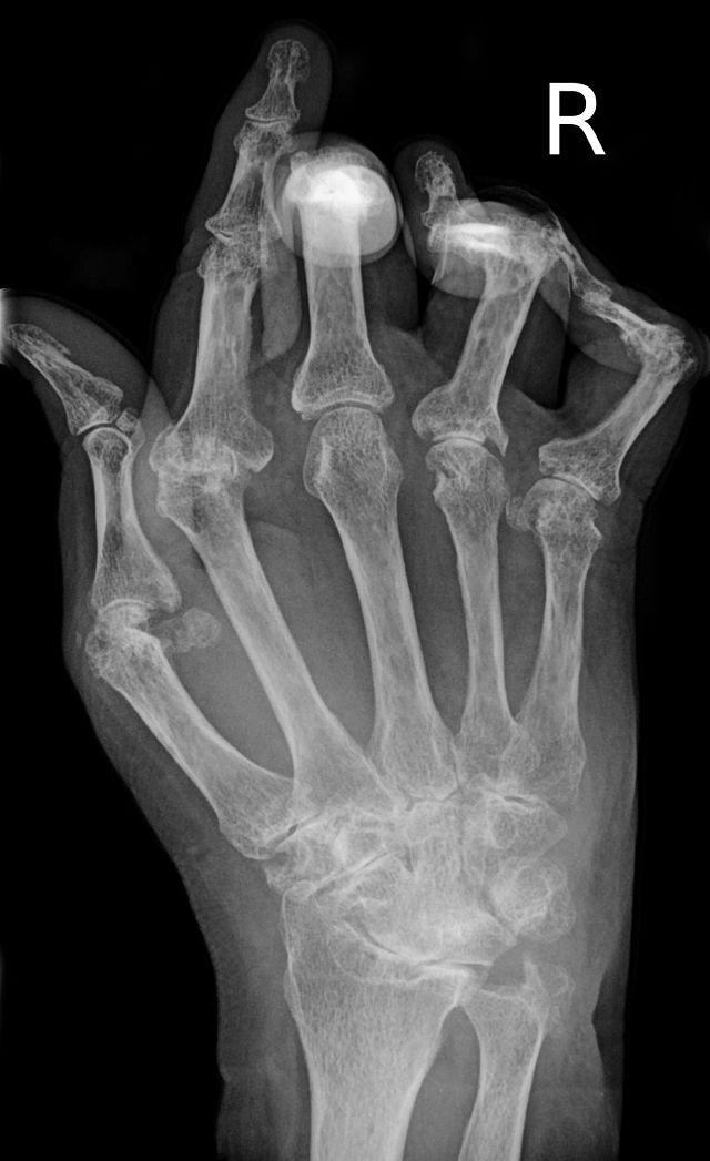 דלקת שגרונתית בכף יד, רנטגן. מתוך ויקיפדיה