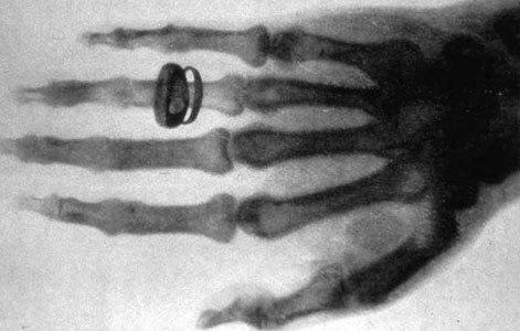 כף ידו של החוקר השווייצרי אלברט פון-קוליקר בצילום שעשה וילהלם רנטגן ב-1896 | מקור: ויקיפדיה, נחלת הכלל