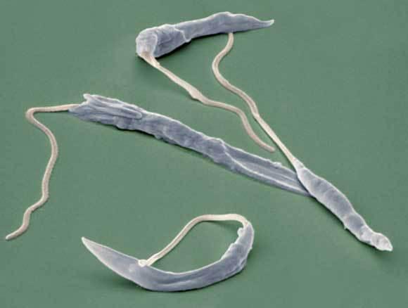 צילום מיקרוסקופ אלקטרונים של טפילי לישמניה | Eye of Science, SPL