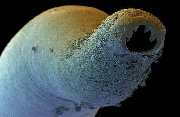 צילום במיקרוסקופ אלקטרונים של תולעת הקרס ששימשה השראה לחוקרים | מקור: DAVID SCHARF / SCIENCE PHOTO LIBRARY