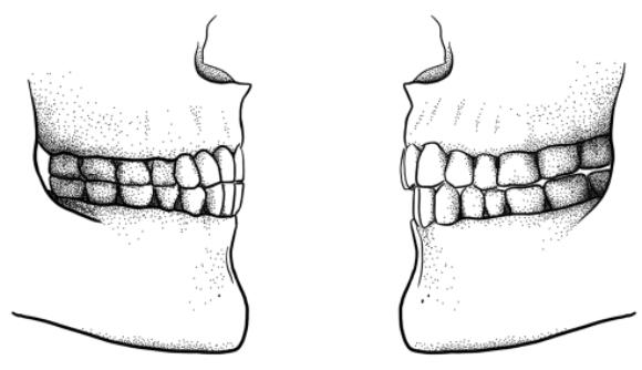 تغيُّر موقع الأسنان - الفكّين في العضّة التّراكبيّة (على يمين الرّسم)، مقابل فكّين على نفس الخطّ│الرّسم مأخوذ من: Tímea Bodogán, University of Zurich